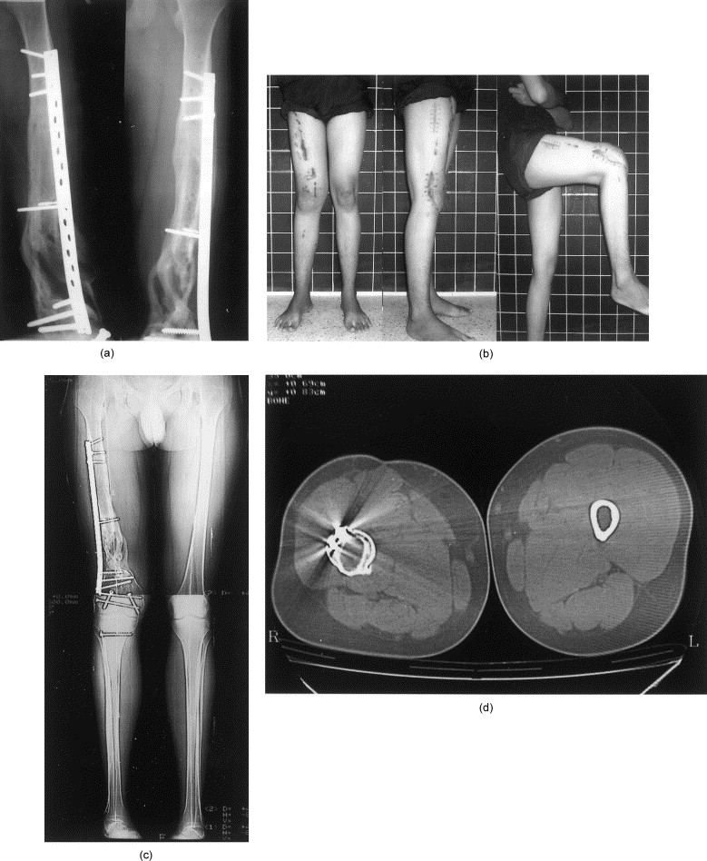 minimally invasive plate osteosynthesis mipo Minimally invasive plate metallosynthesis is a method of osteosynthesis in which  is manual comparison of the fragments and fixing them by the smallest possible.